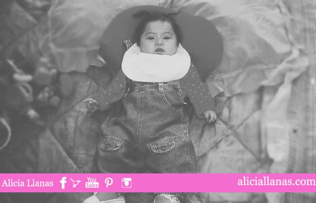 adopcion-sindrome-down-mexico-2